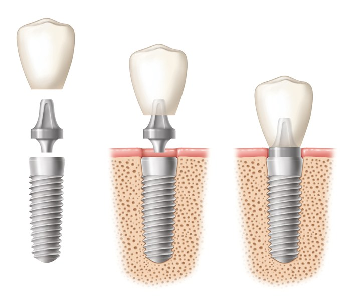 What To Expect from Dental Implant Surgery