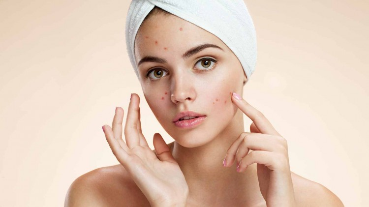 How To Treat and Cure Acne